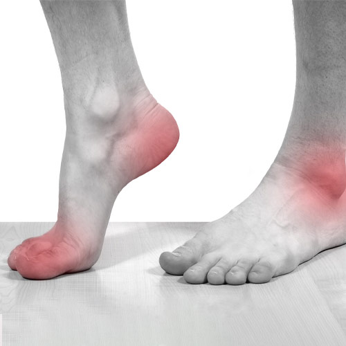 Chiropractic Knoxville TN Foot and Ankle Pain